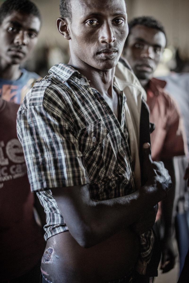 PASIENT: Tasfaya Lanago Tasfaya Lanago er 18 år og flyktet fra Etiopia på søken etter et bedre liv. Han ankom Malawi i desember i 2014, men ble arrestert for å ha kommet til Malawi ulovlig. Han ble dømt ti l 6 måneders fengsel, anket og ba om å bli sendt tilbake til Etiopia, uten hell. Tasfaya har fått sår på kroppen, fordi han må sove på betonggulvet ved siden av potten som bli brukt til toalett. Det er tre ganger flere mennesker i hver celle enn det er plass til, og det er dårlige hygieniske forhold og ikke nok mat.